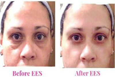 under eye bags treatement