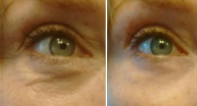How to fill-in sunken eyes?