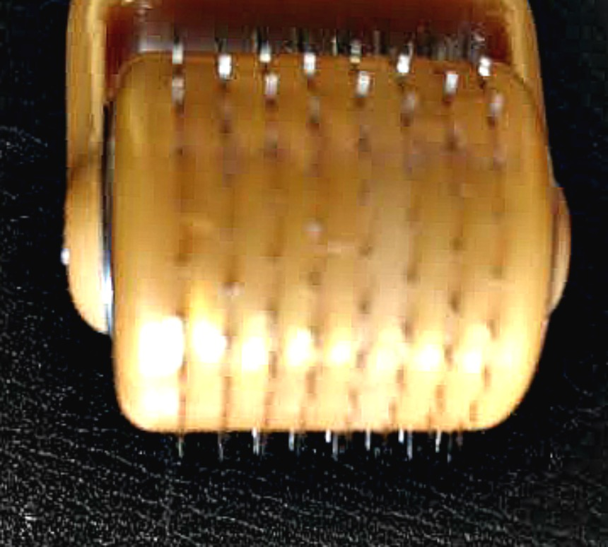 derma roller needling Closeup
