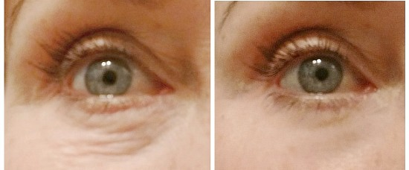 Remedies for under eye wrinkles