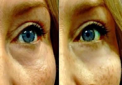 Better than Preparation H to reduce eye puffiness