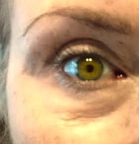 swollen wrinkled eyelids