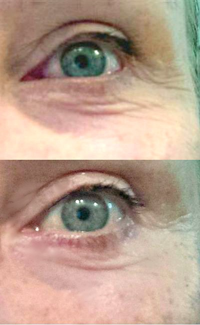 reduce under eye lines before and after