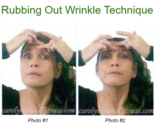 forehead wrinkle release