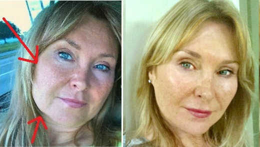 Sagging Face Diy Facelift Without Surgery