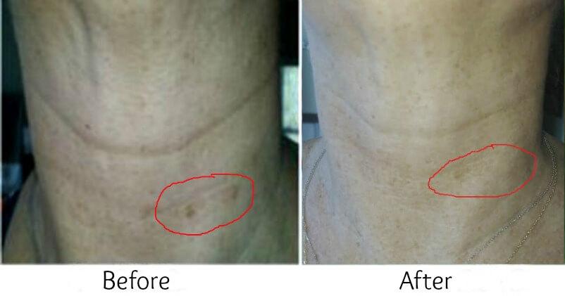 Vitamin C Skin Whitening