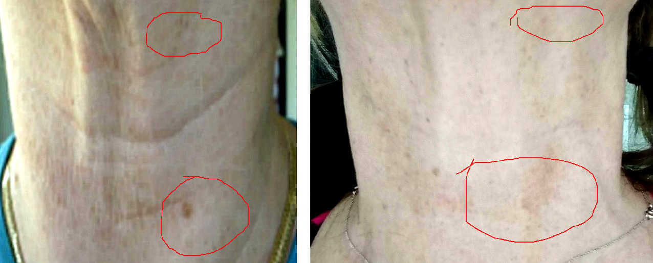How to lighten and fade sun spots