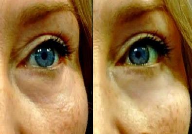 My best eye wrinkle treatment