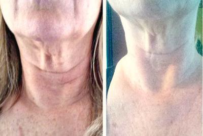 No sagging neck skin