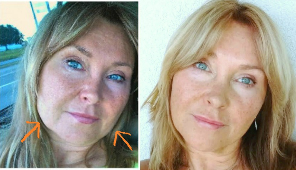 Natural Facelift Home Remedies