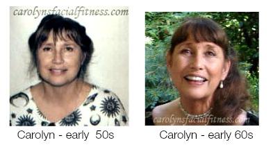 Natural non-surgical face lift