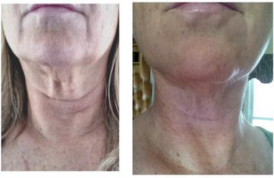 exercise to tighten face skin