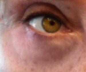 prevent under eye bags