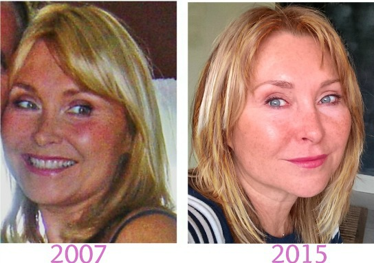 face tightening exercises