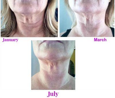 fixing sagging neck skin